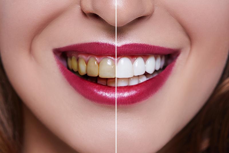 bleking av tenner